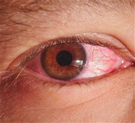 my eye is red watery and sensitive to light eye infections eye care center of cs