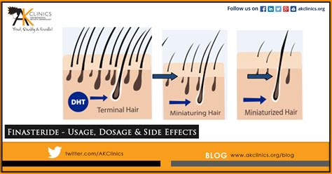 Finasteride Dosage Uses Side Effects For Hair Loss | finasteride dosage uses side effects for hair loss
