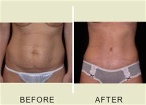 After Section by 1000 Images About Tummy Tuck On Tummy Tucks