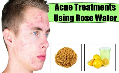 acne treatment get rid of acne scars