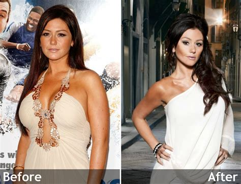 jenni jwoww before and after plastic surgery breast hunger hormone control tips and tricks
