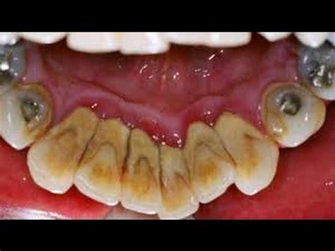 Perawatan Membersihkan Karang Gigi Cara Perawatan Gigi Dan Mengatasi Karang Yang Dapat