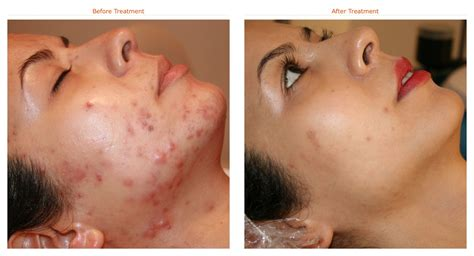 Skincare For The Treatment Of Acne by What Is The Best Acne Treatment Dorothee Padraig South