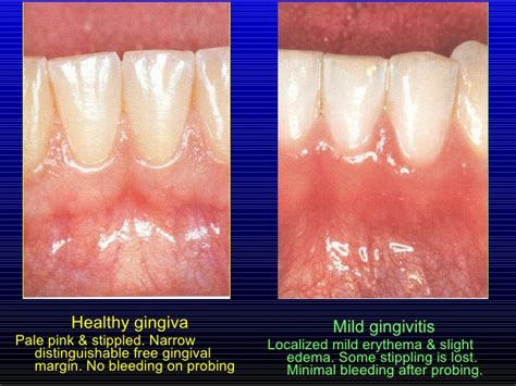 11 from gingivitis to