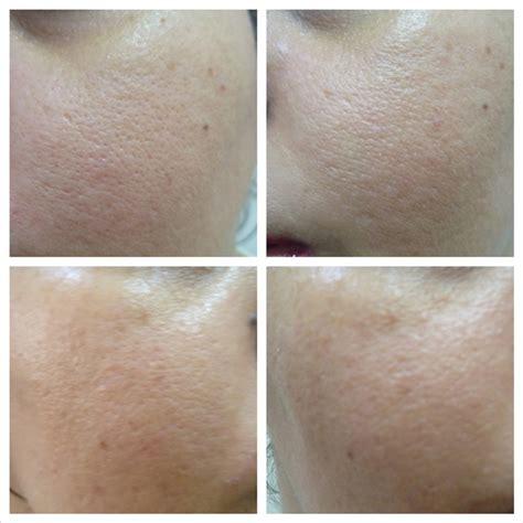 clinique even better erfahrung estee lauder idealist pore minimizing skin refinisher review