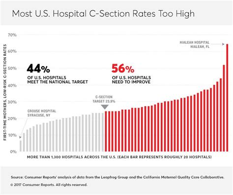 what are the risks of c section your biggest c section risk may be your hospital