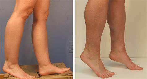 lipo light vs coolsculpting how to get effective leg liposuction health 2 0