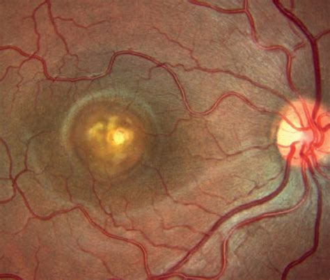 pattern dystrophy prognosis best disease best vitelliform macular dystrophy