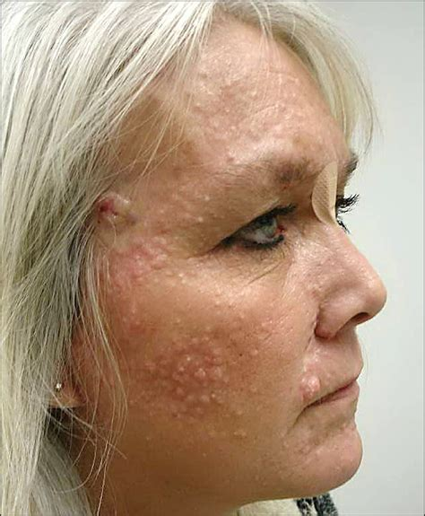 benefits of being 47 years old numerous facial lesions in a 47 year old woman quiz case