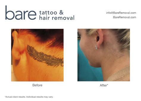 tattoo removal consultation greater chicago laser removal 183 bareremoval