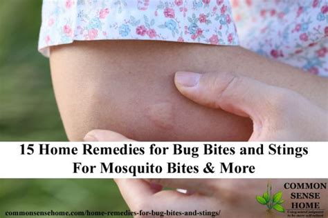 15 home remedies for bug bites and stings for mosquito
