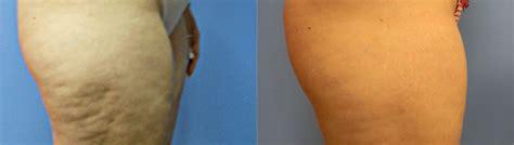 home cellulite laser 15 minute cellulite treatment verju green laser