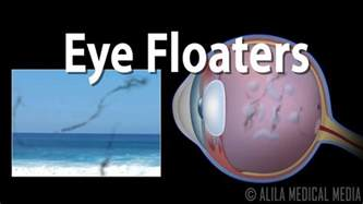 eye floaters and flashes animation