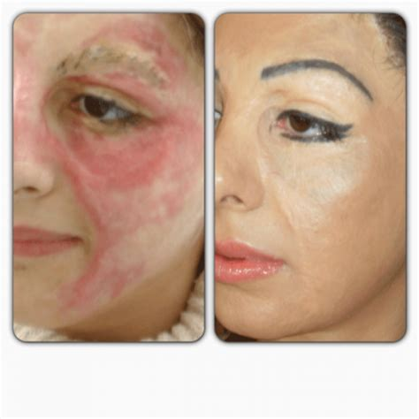 cosmetic tattoos permanent makeup tattooist basma hameed hides scars burns