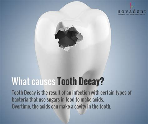 dental testimonials cure tooth decay what causes tooth decay tooth decay is the result of an