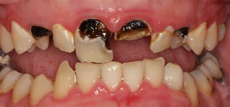 The Tooth tooth decay causes tooth decay prevention root canal