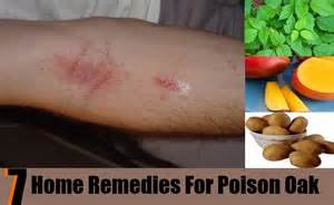 top 7 home remedies for poison oak treatments