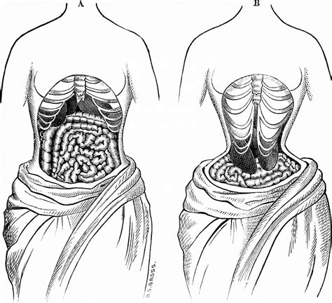 waist training 19th century corset on a comeback metro are waist trainers bad for you