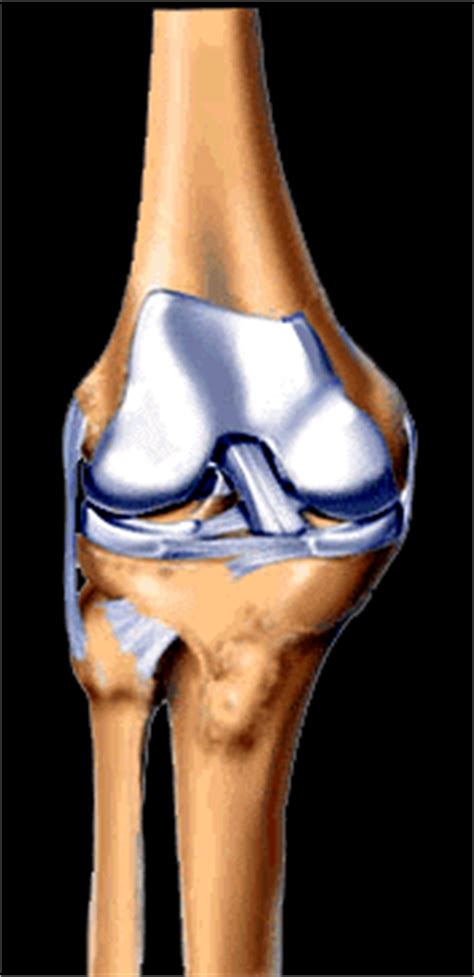 meniscopatia interna futbol can mecanismos de lesi 243 n meniscal 191 c 243 mo se