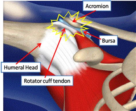 ac joint pain bench press common shoulder injuries in weight lifting