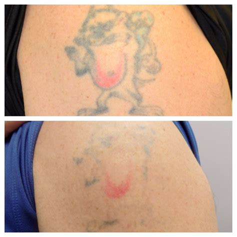 tattoo hot water treatment 34 best aesthetic laser center at blue water spa images on