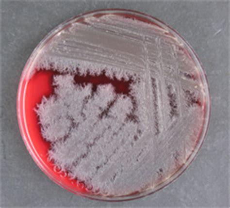 bacillus mycoides  type strain dsm  atcc