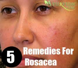home remedies for rosacea top 5 home remedies for rosacea treatments and