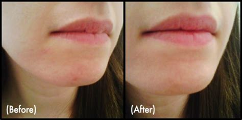 vichy dark spot corrector before and after photos vichy dark spot corrector before and after photos