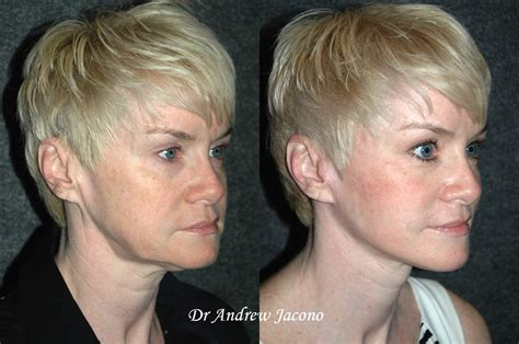 mini face lift new york facial plastic surgery patient of dr andrew jacono mini face lift yelp
