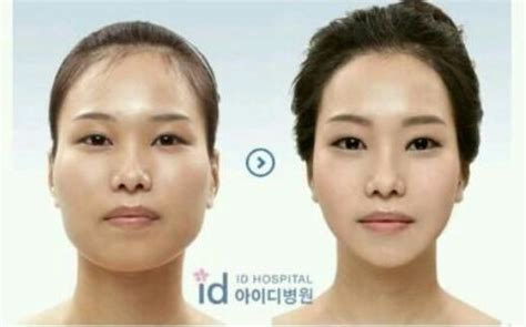 v shape jaw surgery plastic surgery procedures in asia and western countries