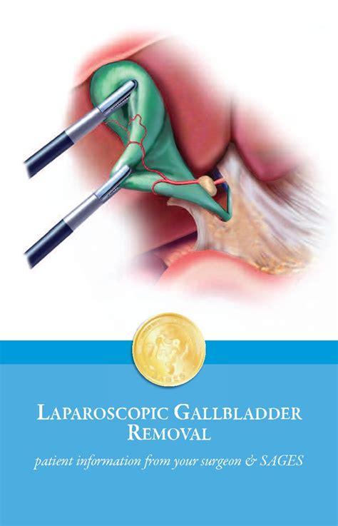 Shoulder Liver Detox by 171 Best Gallbladder Surgery Images On
