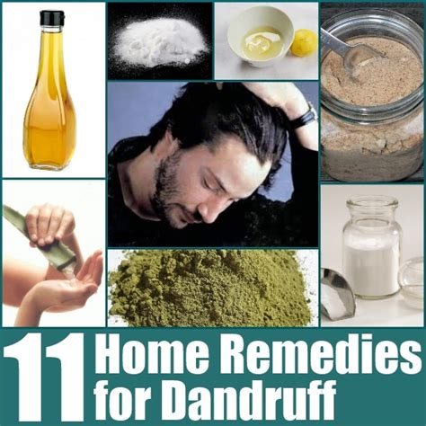 11 home remedies for dandruff search home remedy