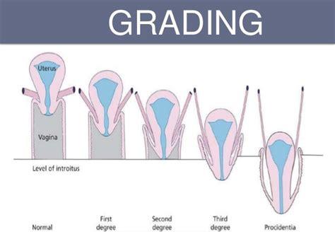 prolapsed bladder symptoms cystocele pelvic organ prolapse