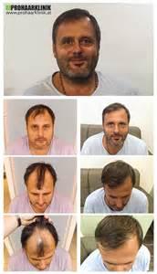 haartransplantation bilder vorher nachher haartransplantation vorher nachher bilder