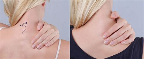 laser tattoo removal questions and answers laser tattoo removal before and after rancho wellness