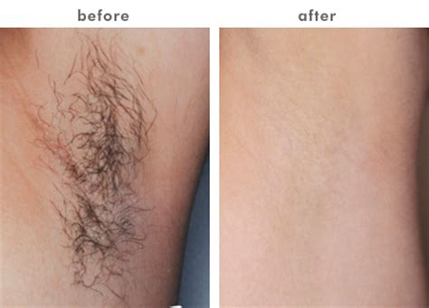 hair removal pics kirkland permanent laser hair removal medical spa