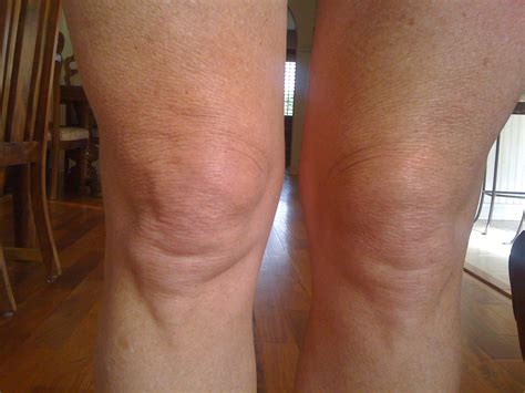 knee lift surgery before and after knee lift surgery knee lift surgery demi moore knee