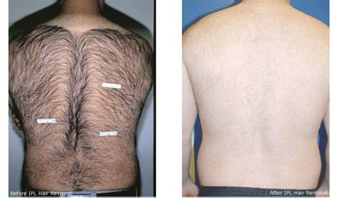 male genital hair removal before after photos ニューヨークのメンズ脱毛 シズカニューヨーク デイスパシズカニューヨーク デイスパ