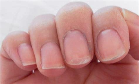 Nail Peel soft nails vitamin deficiency nail ftempo