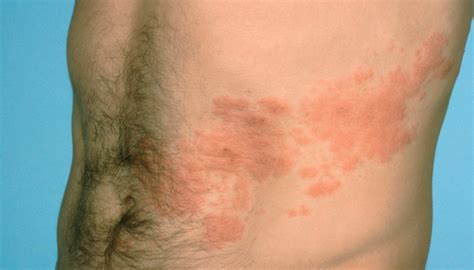 light burning in stomach what does shingles look like shingles pictures