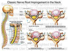 nervous ills their cause and cure classic reprint books nerves in neck 580x615 anatomy you need to what