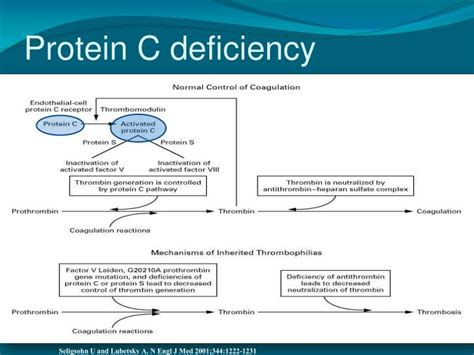 c protein deficiency ppt choi md hematology oncology arizona center