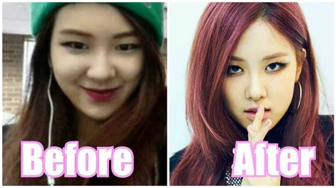 Blackpink Plastic Surgery | blackpink before after 2016 youtube