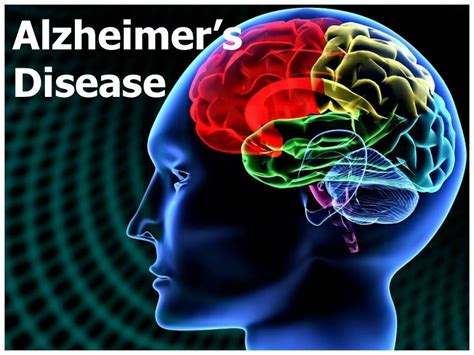 Alzheimer S Disease Management Disease Powerpoint Template