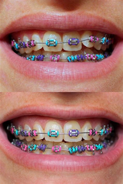 braces color ideas 1000 ideas about braces colors on braces