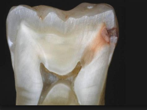 cross section of tooth the 5 stages of tooth decay news dentagama