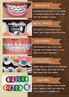 braces colors quiz 316 best images about dental infographics on