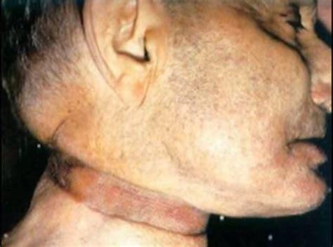 valentin elizalde cadaver ver el cad 225 ver de un famoso te har 225 meditar im 225 genes