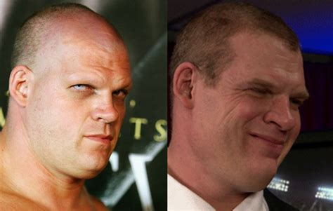 has sting had a hair transplant kane hair wwe www pixshark com images galleries with a