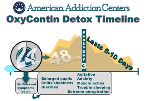 Detox From Oxycontin by Detox Timeline For Oxycontin River Oaks